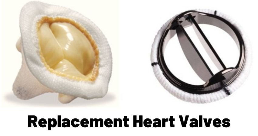 replacement heart valves