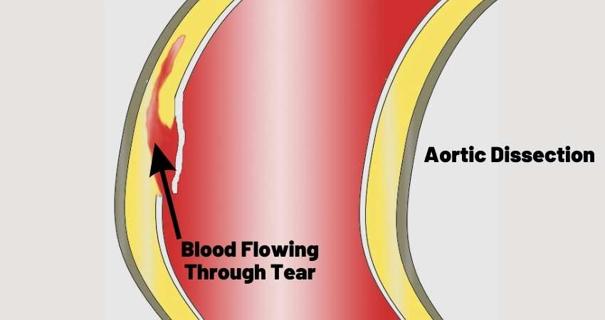 aortic dissection affect on blood pressure