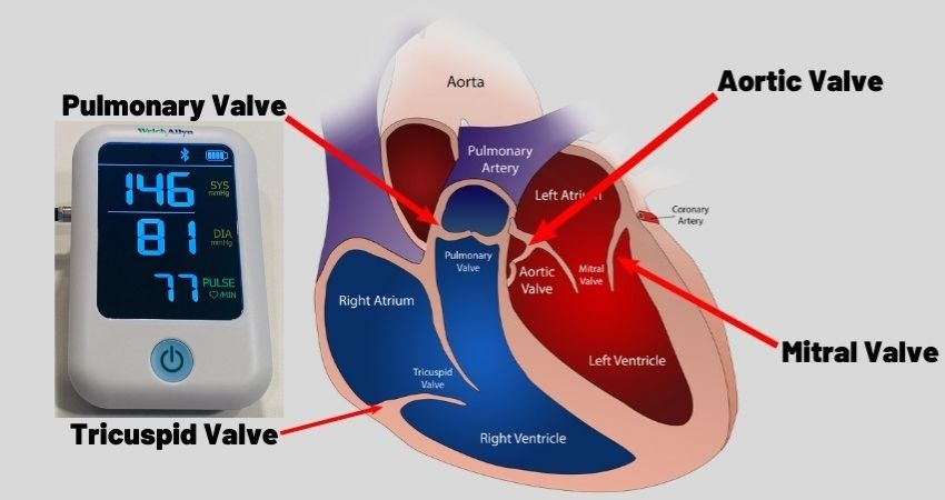 can high blood pressure cause heart valve damage
